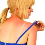 Як допомогти обгорілій на сонці шкірі
