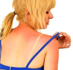 Як допогти обгорілій на сонці шкірі