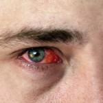 Симптоми і лікування кон'юнктивіту