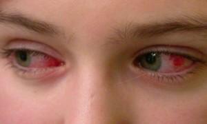 Симптоми кон'юнктивіту
