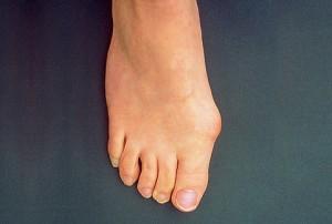 Як позбутися кісточки на великому пальці ноги