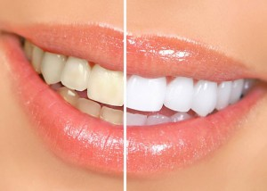 Як зберегти білосніжність зубів